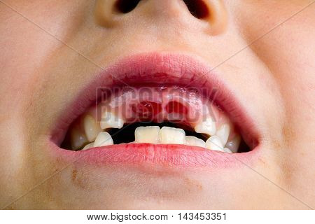 Close up image of the mouth of a little girl who just lost her two front teeth. There are new teeth growing in where the old ones have fallen out and the holes still have some blood in them.