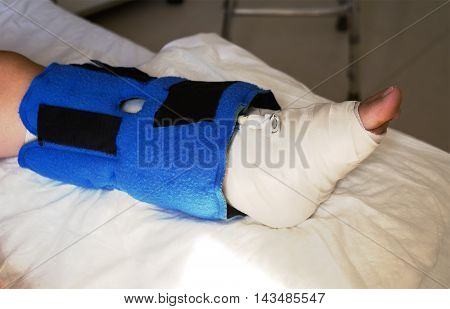 broken leg bandaged and placed on the bed