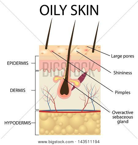 Illustration of The layers of oily skin on the white background.