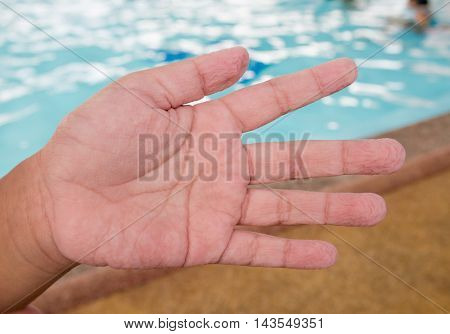Children 's Hand From Play In The Water For A Long Time ,withered Hands. Education Concept.