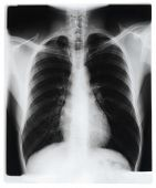 image of radiogram  - Chest x - JPG
