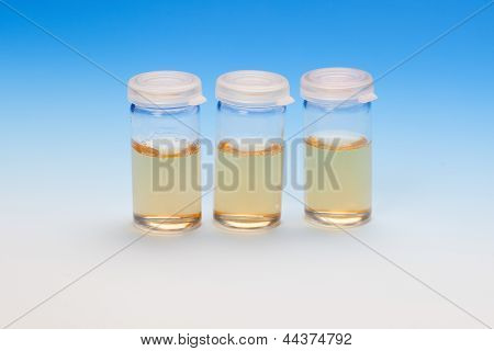 Three Liquid Samples In Plastic Vials.
