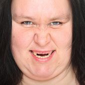 stock photo of missing teeth  - Portrait an ugly woman with missing teeth - JPG