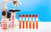 pic of diabetes  - Blood test in medical laboratory - JPG