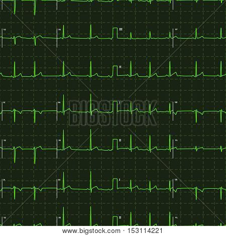 Typical human electrocardiogram green graph with white marks on dark background, seamless pattern