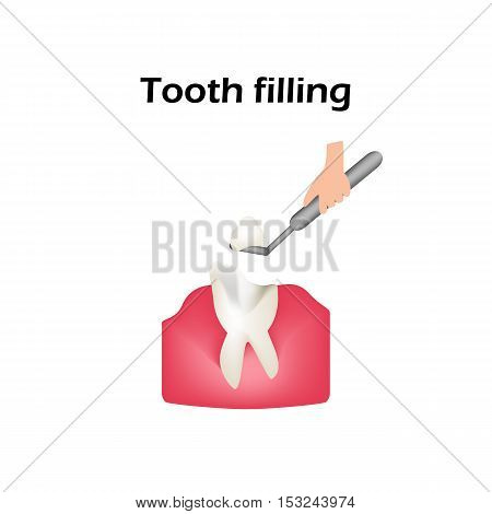Treatment of caries. Sealing of the tooth. Infographics. Vector illustration on isolated background.