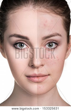 Woman with problem skin on her face before and after treatment over white background