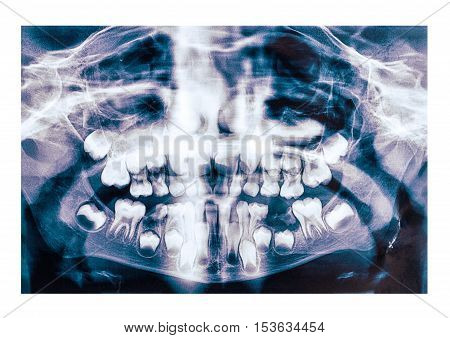 Children's dental x-ray picture on white background