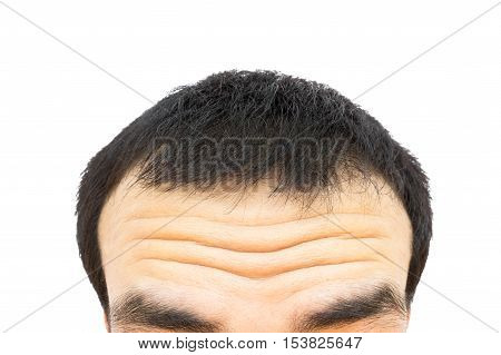Closeup wrinkles on forehead young man Hair loss for health care concept
