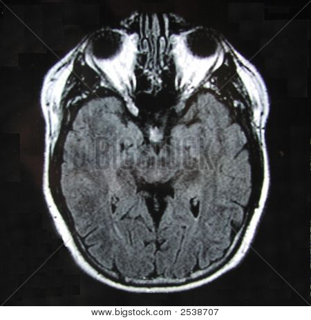 Mri Of Brain With Eyeballs Alone