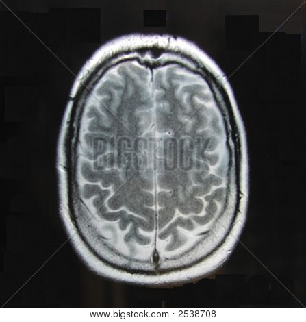 Mri_Of_Brain_Alone