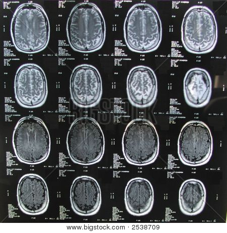 Mri Brain Multiple
