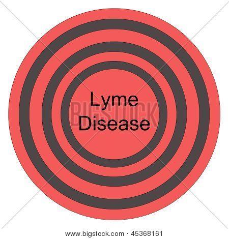 Lyme Disease Red Bullseye