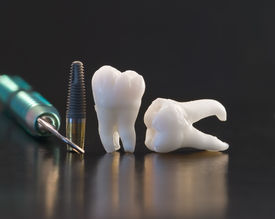 pic of overbite  - Dental Titan implant Wisdom teeth and dental tools - JPG