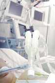 foto of icu  - ICU patient on the artifical lung equipment - JPG