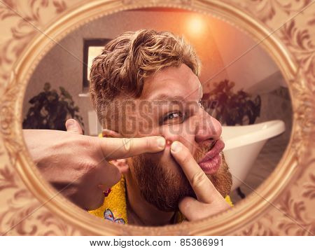 Adult man squeezes the pimple on his face