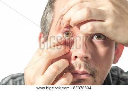 Changing Contact Lenses