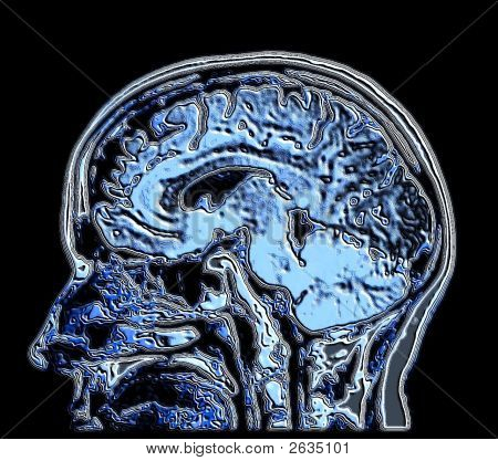 2D Mri Brain Image with 6mm Pituitary Tumor
