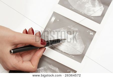 Female doctor pointing at an ultrasound analysis of an ovary