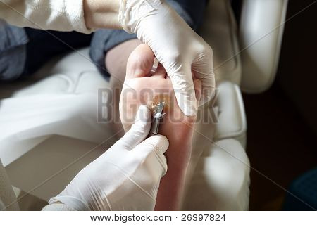 Foot care - Chiropody