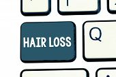 Text Sign Showing Hair Loss. Conceptual Photo Loss Of Huanalysis Hair From The Head Or Any Part Of T poster