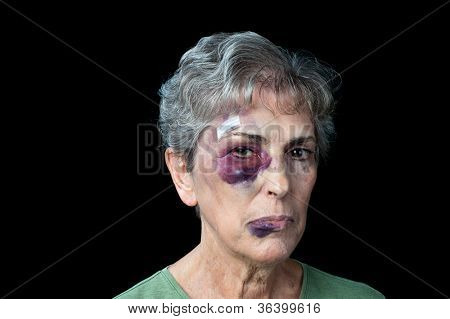 An elderly grandmother badly beaten with stitches, a black eye and a fat lip.