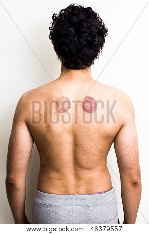 Man with marks from cupping therapy