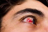 stock photo of hemorrhage  - Close up on a man - JPG