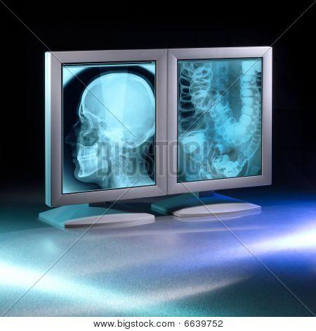 Two x-ray monitors