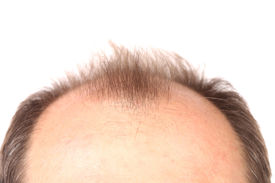 picture of male pattern baldness  - Bald men - JPG