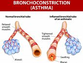 picture of cough  - Asthma is a chronic inflammatory disease of the airways that is characterized by narrowing of the airways and dyspnea - JPG