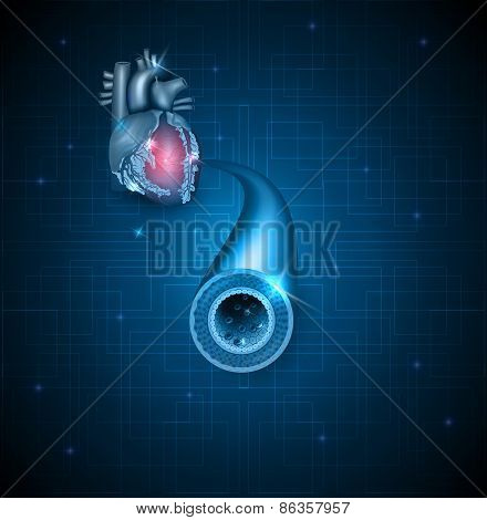 Human Artery And Heart