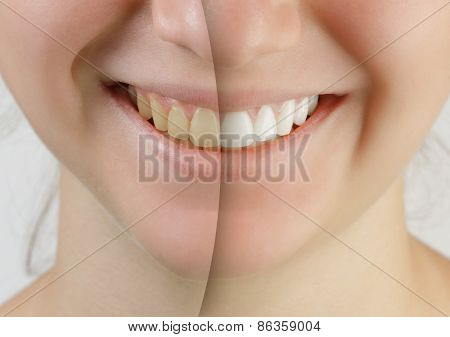 teen girl smile before and after teeth whitening