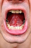 pic of gingivitis  - Diseased teeth of the patient - JPG