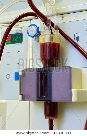 Dialyse-Medizintechnik