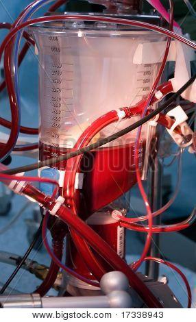 blood reservoir for cardiopulmonary bypass during cardiac surgery