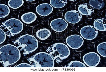 Mutiple imagen de resonancia magnética del cerebro y cráneo