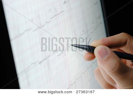 analyzing ecg graph on screen