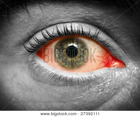 Conjunctivitis. Photo of an infected eye