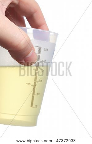 Holding urine sample