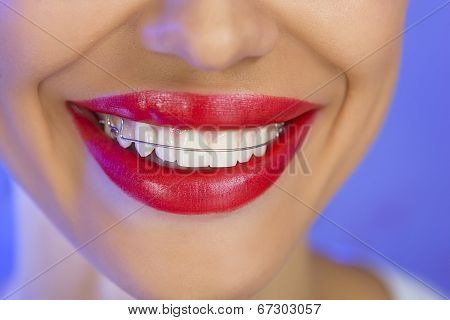 Beautiful Smiling Girl With Retainer For Teeth, Close-up (on A Blue Background)