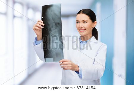 healthcare, medicine and radiology concept - smiling female doctor looking at x-ray