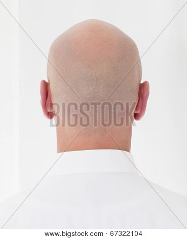Back Of A Bald Head