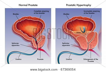 Prostatic hypertrophy