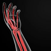image of autopsy  - 3d render illustration of the hand skeleton - JPG