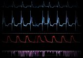 picture of pacemaker  - Screen medical monitor - JPG