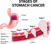 stock photo of mucosa  - The clinical stages of stomach cancer - JPG