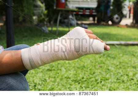 Splint Broken Bone  Hand Injured