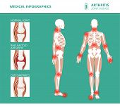 Rheumatism Or Rheumatic Disorder Medical Posters. Arthritis Joint Pain Syndrome. Major Rheumatic Dis poster