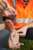 stock photo of blisters  - Safety and accident can happen at work.